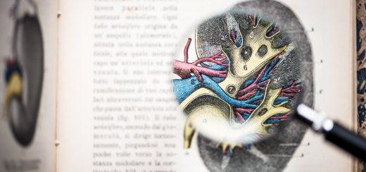 Dapagliflozin malattia renale