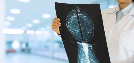 cardioprotezione tumore seno