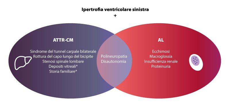 amiloidosi cardiaca ANMCO 2021